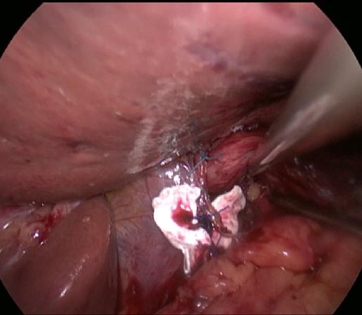 calibrarea hiatusuui esofagian